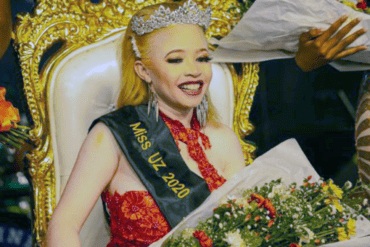 Miss Albinism Zimbabwe wears a tiara and holds a bouquet